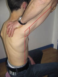 figure1-angle-thoraco-humeral