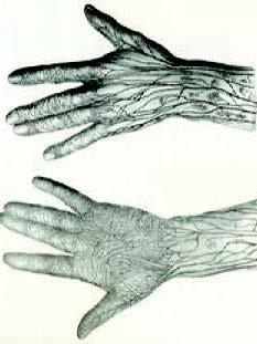 Anatomie des lymphatiques superficiels de la main d'après Sappey