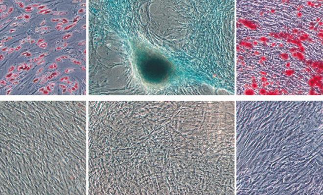 La stimulation électrique à 448 kHz favorise la prolifération de cellules souches mésenchymateuses humaines