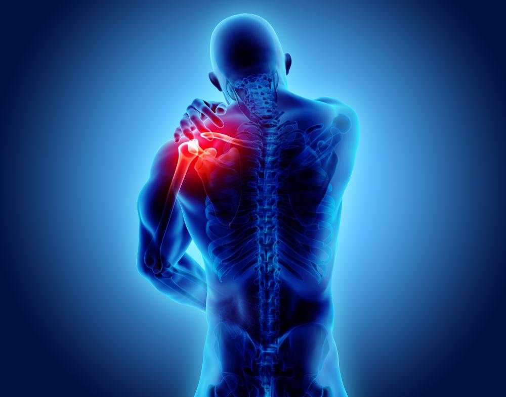 Ce qu'il faut retenir des troubles musculo-squelettiques (TMS)