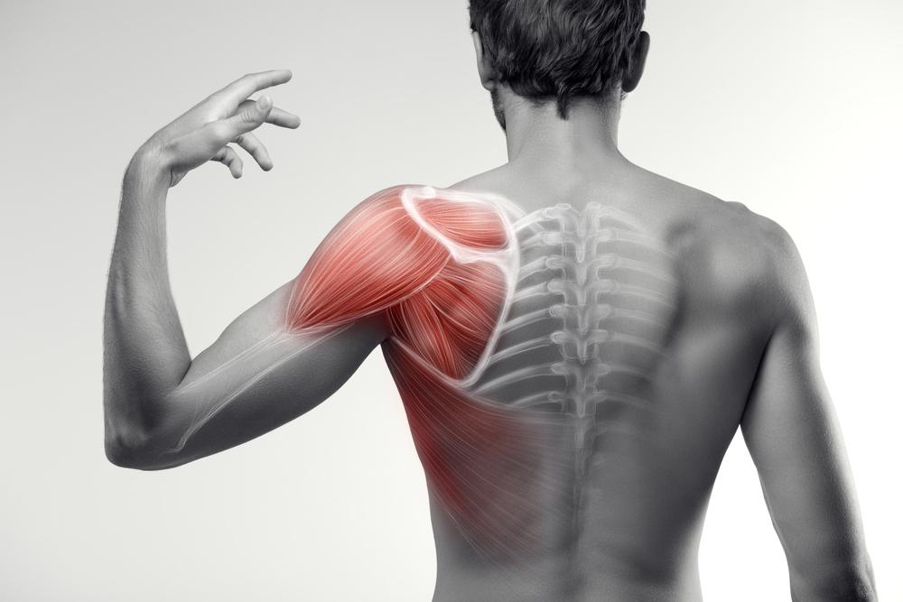 Développement d'un outil d'aide pour la prise de décision partagée en cas de douleurs d'épaule associées à une déchirure non-traumatique de la coiffe des rotateurs