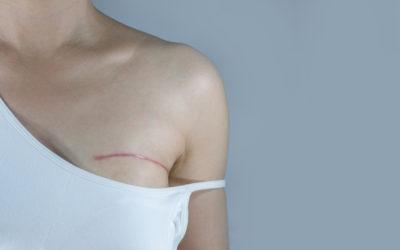 Le tatouage pour reconstruire le mamelon et l'aréole après une mastectomie. Dermopigmentation médicale ou tatouage artistique en 3D, quelles différences et comment choisir l'option la plus adaptée ?